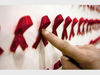 лечение вич и СПИДа в Израиле